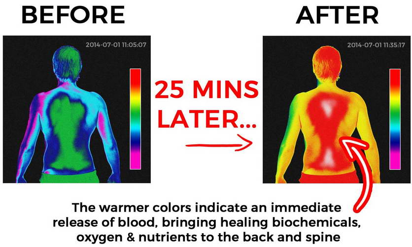 backpain thermal before after