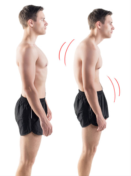 Forward Head Posture Fix Program